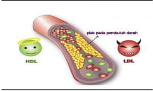 Ilustrasi Kolesterol dan cara menurunkan kolesterol