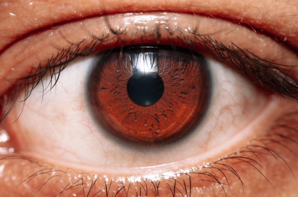 Penyebab mata berair